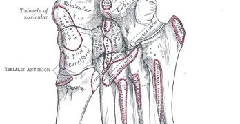 Anatomy of Metatarsal Bones and Phalanges