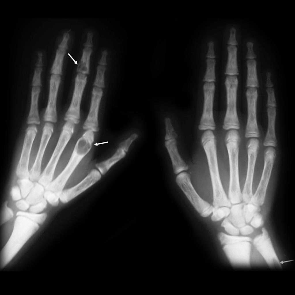 Bone Tumors Images and Xrays | Bone and Spine