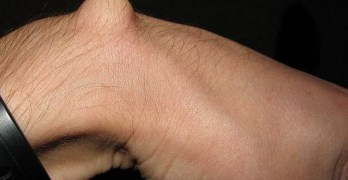 Ganglion Cyst Presentation and Treatment