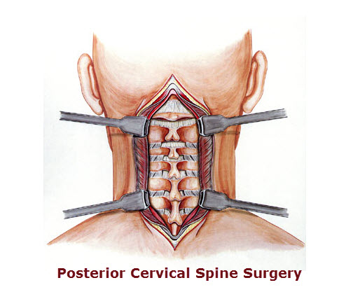 Cervical Spine Surgery In Disc Disease Bone And Spine