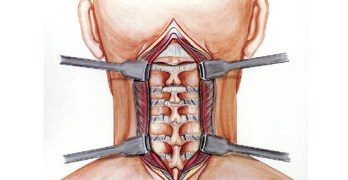 Cervical Spine Surgery in Disc Disease