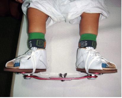 Child on Denis Browne Splint