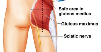 Gluteal Region Anatomy and Significance
