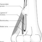 Causes of pronator syndrome