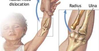 Pulled Elbow or Subluxation of Radial Head in Children