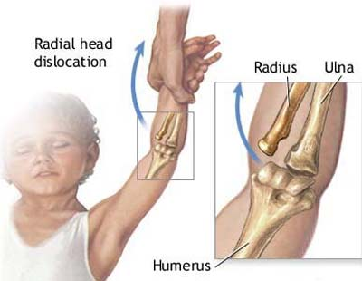 Pulled Elbow Or Subluxation Of Radial Head In Children Bone And Spine
