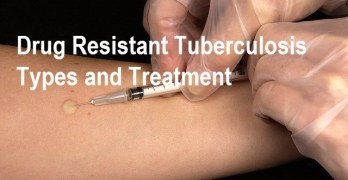 Drug Resistant Tuberculosis – Types and Treatment
