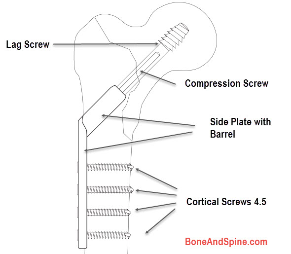 Parts of Dynamic Hip Screw