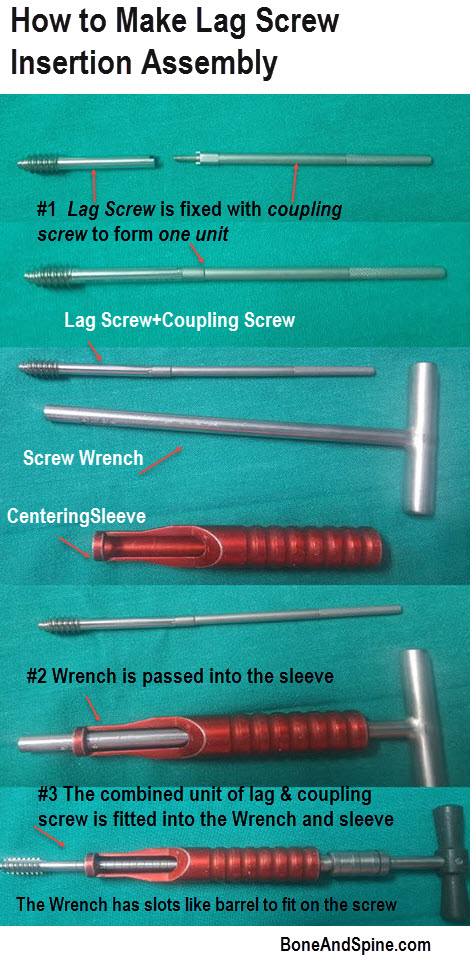 Lag screw assembly
