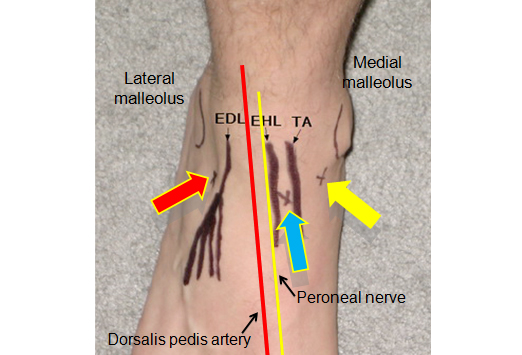 ankle arthrocentesis sites