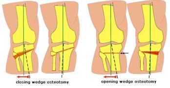 Osteotomy Procedure and Indications