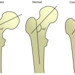 Coxa Valga Causes and Treatment