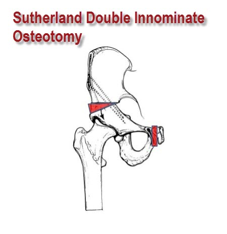 Sutherland double innominate osteotomy