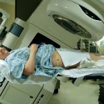 Radiation Therapy for Tumors