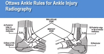 Ottawa Ankle Rules for Ankle Injury Radiography