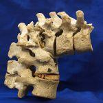 Kyphotic Deformity of Spine in Tuberculosis