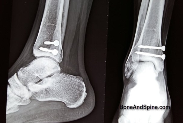 X-rays 3 months after surgery showing good union