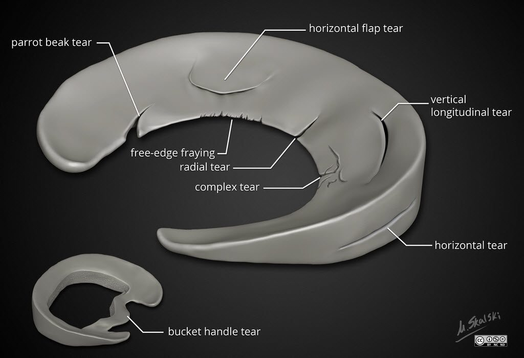 Types of Meniscal tear