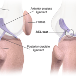 Anterior Cruciate Ligament Injury or ACL Injury