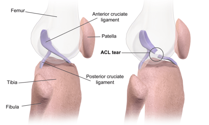 anterior cruciate ligament injury