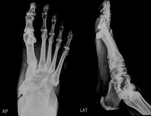 accessory Navicular Bone