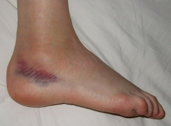 Ankle sprain of second degree