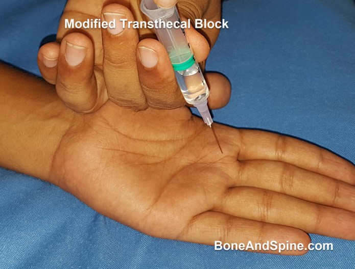 modified transthecal block with vertical needle