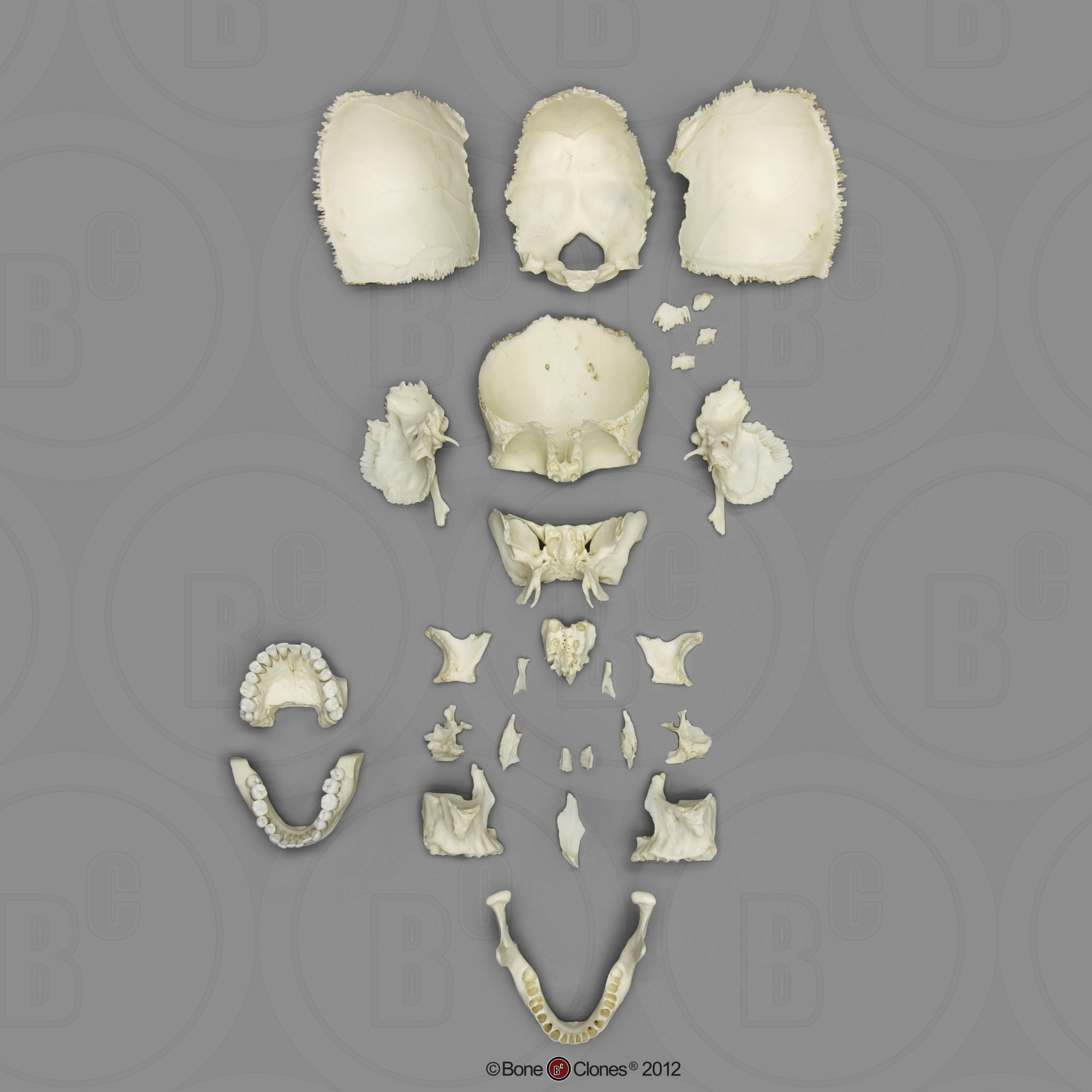 hight resolution of disarticulated human medical study skull