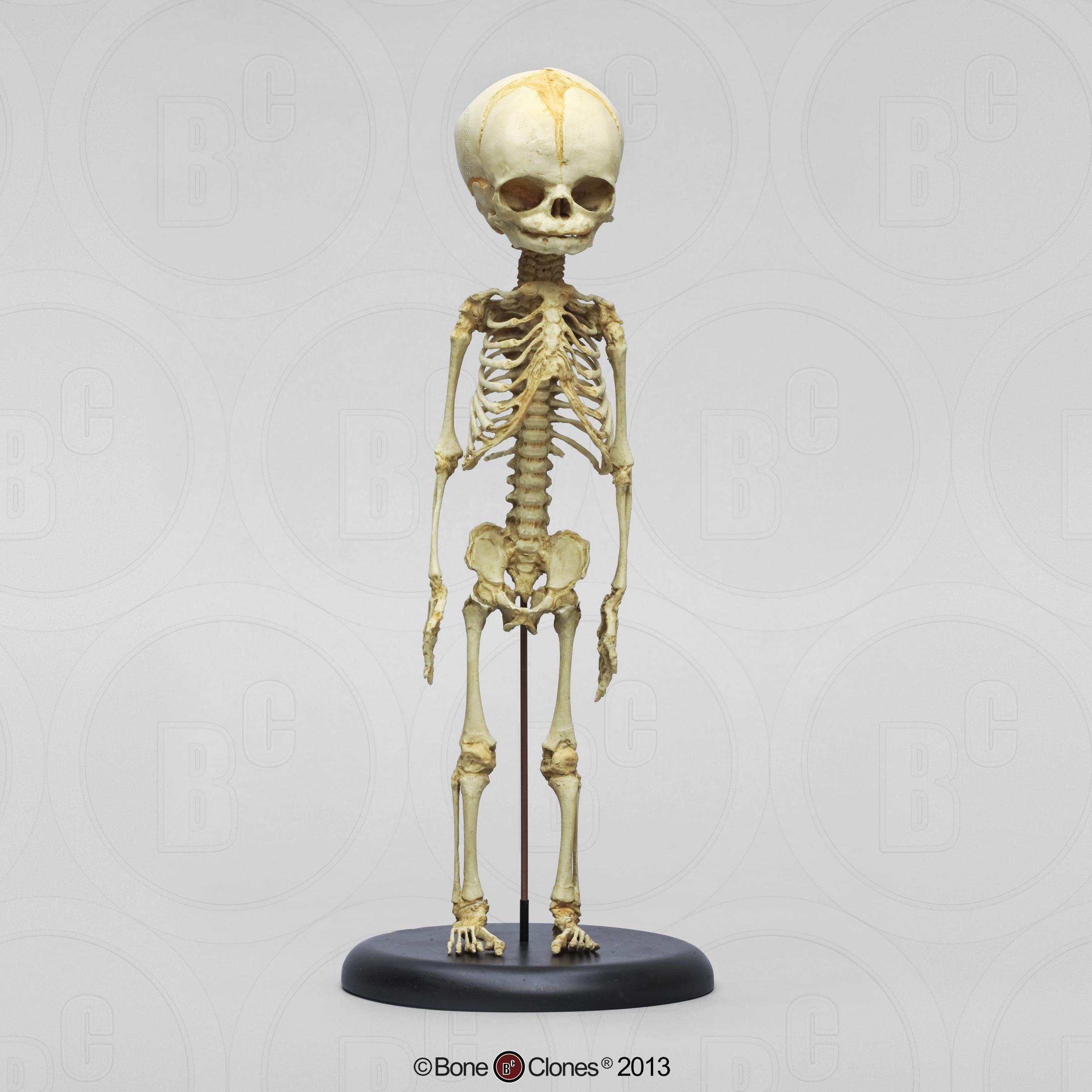 Articulated Human Fetal Skeleton