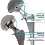 Metal-on-Metal Big Femoral Head (Wright Medical)