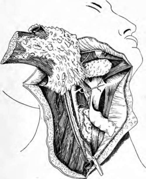 Tumors of Tongue