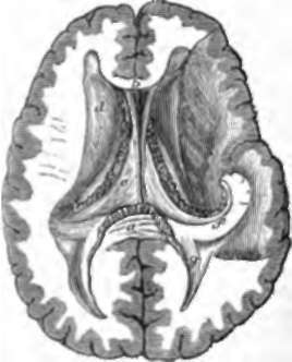 The Whole Of The Brain Above The Level Of The Tentorium. Continued