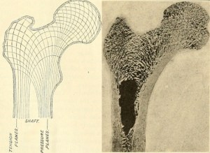 A photograph of the internal architecture of the hip bone, with a diagram of the stress lines within it.