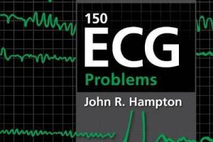 150 ECG Problems by John Hampton 4th Edition PDF