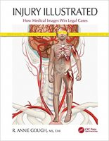 Injury Illustrated How Medical Images Win Legal Cases PDF