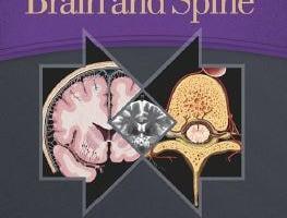 Imaging Anatomy Brain and Spine PDF