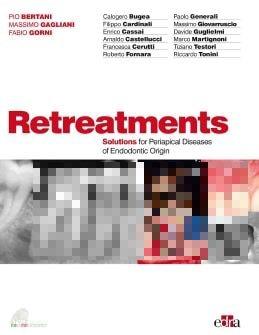 Retreatments Solutions for Periapical Diseases of Endodontic Origin PDF