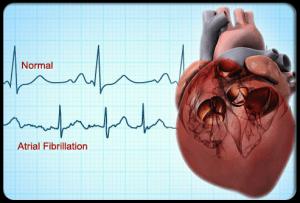 Heart, ECG