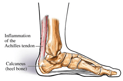 Achilles Tendon Disorders – Boot Camp & Military Fitness Institute