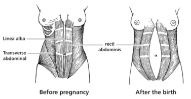 Picture, Changes in the Abdominal Muscles