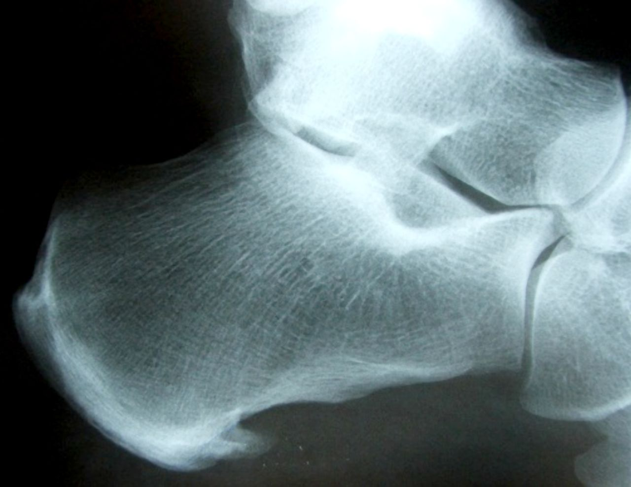 Figure 3: X ray of calcaneal spur.