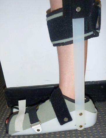 Figure 8: A rigid night splint to keep the foot at 90 degree angle.