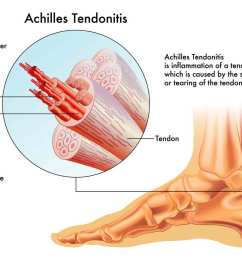 what is achilles tendonitis [ 1290 x 942 Pixel ]