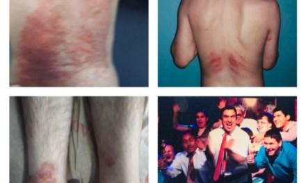 Horror en jóvenes con discapacidad: atados y lastimados en hospitales donde los atendieron por Covid