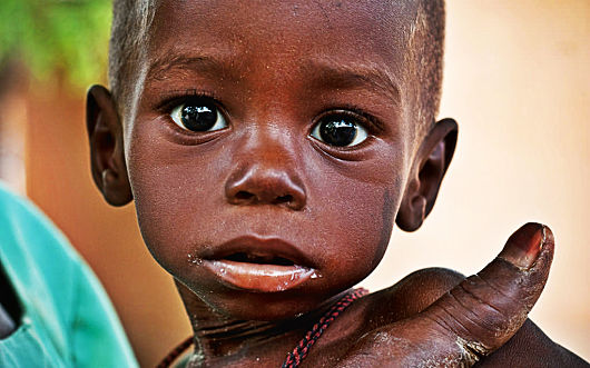 10 Important Facts About Malnutrition - The Boren Project