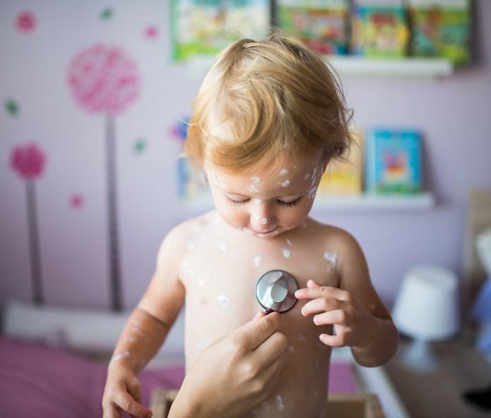 barn med skoldkopper