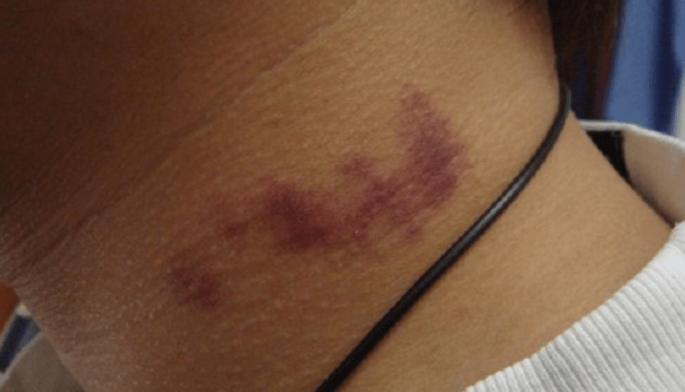 LEHER: Seorang remaja mengalami pembekuan darah usai di cupang kekasihnya. (foto: internet)