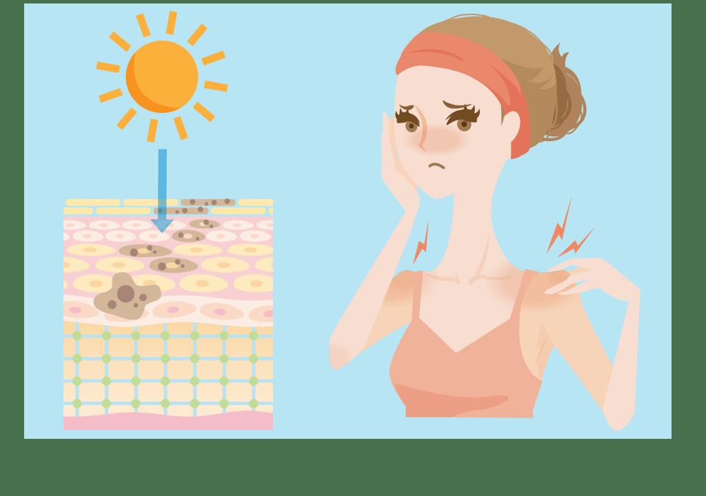 日焼けは脱毛の大敵