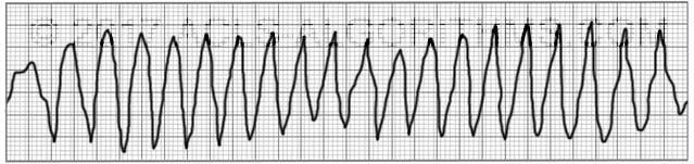 polymorphic-ventricular-tach