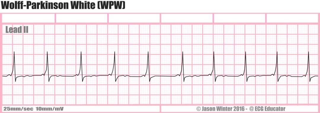 Wolff-Parkinson-White Syndrome EKG